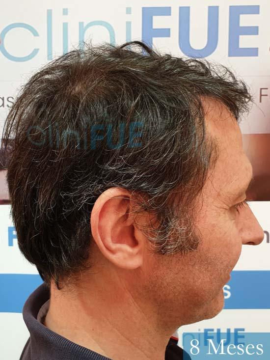 Cristobal 46 Bilbao injerto capilar turquia 8 meses desde trasplante de pelo