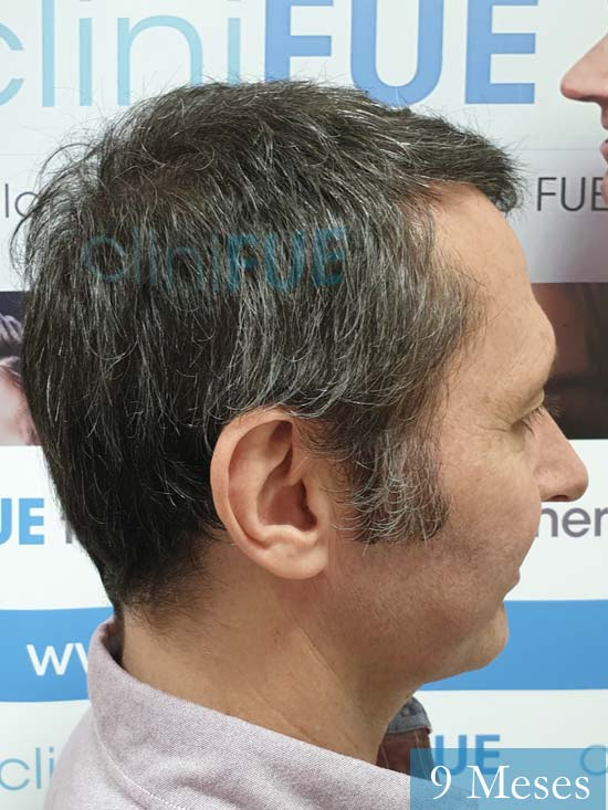 Cristobal 46 Bilbao injerto capilar turquia 9 meses desde trasplante de pelo