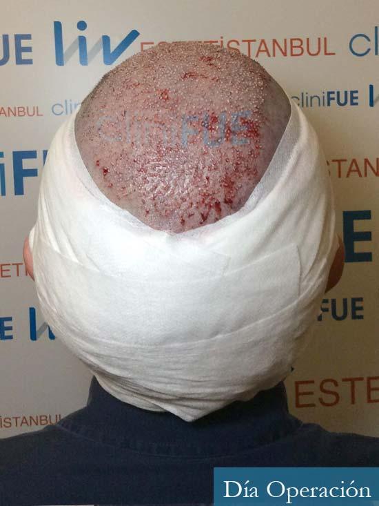 Cristobal 46 Bilbao injerto capilar turquia dia operacion