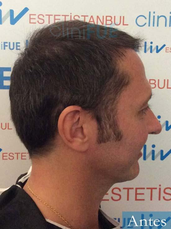 Cristobal 46 Bilbao injerto capilar turquia dia operacion antes