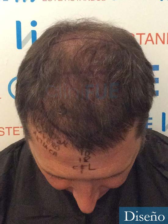 Cristobal 46 Bilbao injerto capilar turquia dia operacion diseno