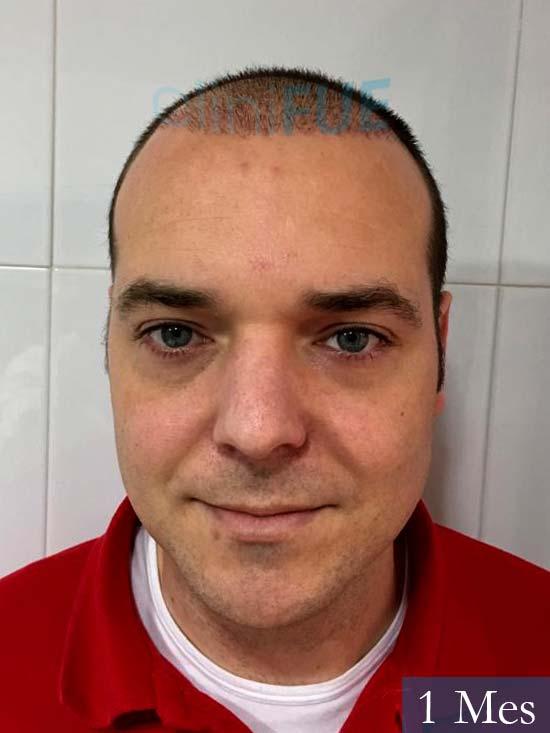 Miguel 36 Almeria injerto de pelo dia operacion 1 mes 1