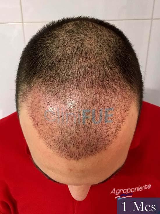 Miguel 36 Almeria injerto de pelo dia operacion 1 mes 2