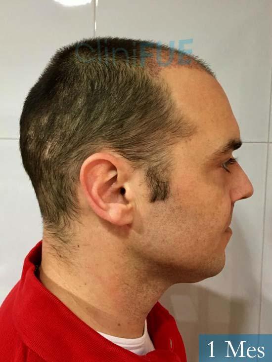 Miguel 36 Almeria injerto de pelo dia operacion 1 mes 4
