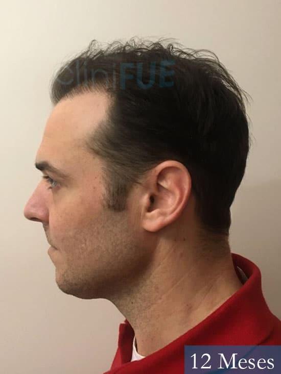 Miguel 36 Almeria injerto de pelo dia operacion 12 meses 5