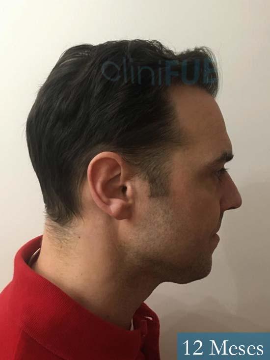 Miguel 36 Almeria injerto de pelo dia operacion 12 meses 4