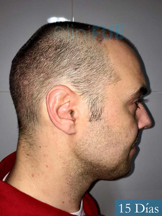 Miguel 36 Almeria injerto de pelo dia operacion 15 dias 4