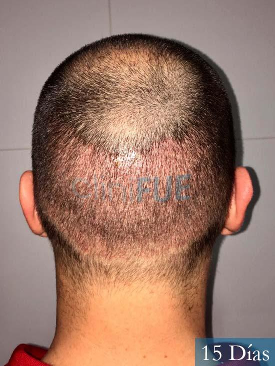 Miguel 36 Almeria injerto de pelo dia operacion 15 dias 6