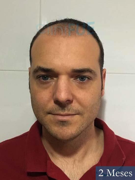 Miguel Antonio 36 Almeria injerto de pelo dia operacion 2 meses 1