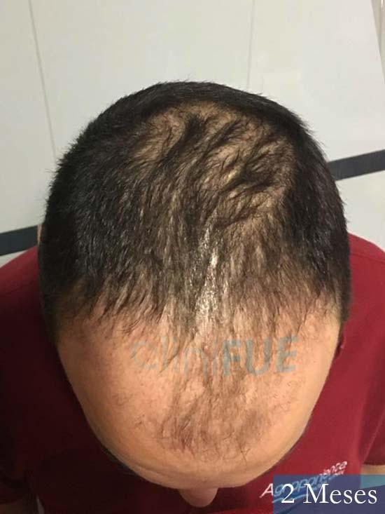 Miguel Antonio 36 Almeria injerto de pelo dia operacion 2 meses 3
