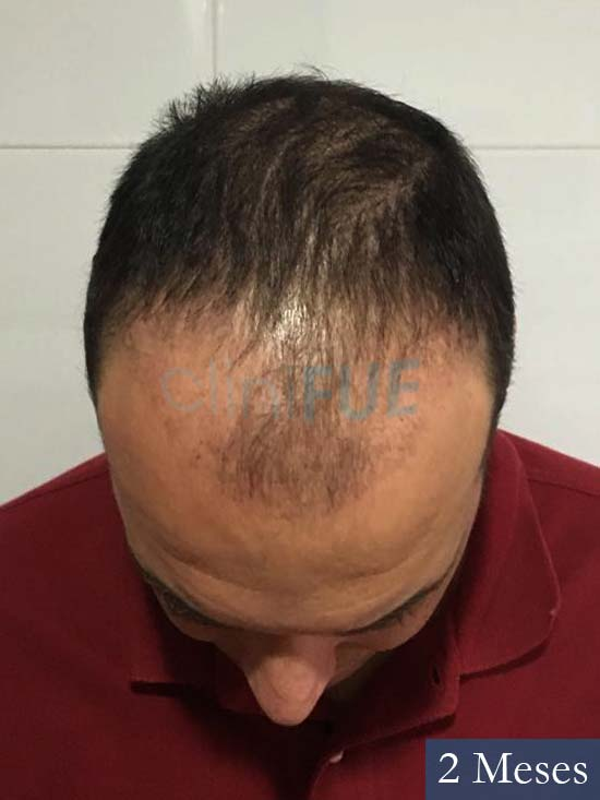 Miguel Antonio 36 Almeria injerto de pelo dia operacion 2 meses 2