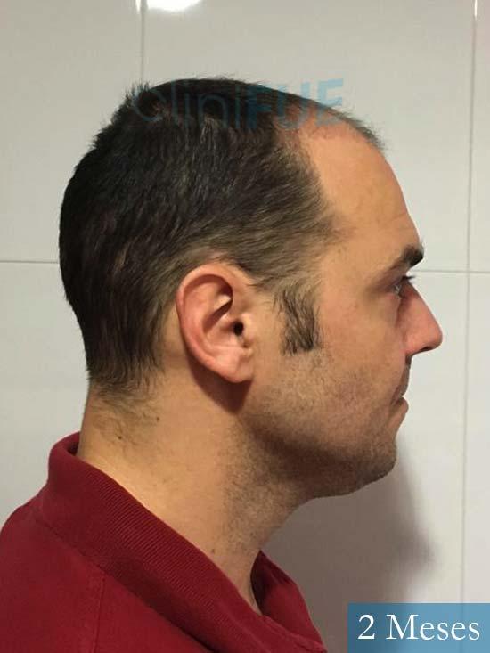 Miguel Antonio 36 Almeria injerto de pelo dia operacion 2 meses 4