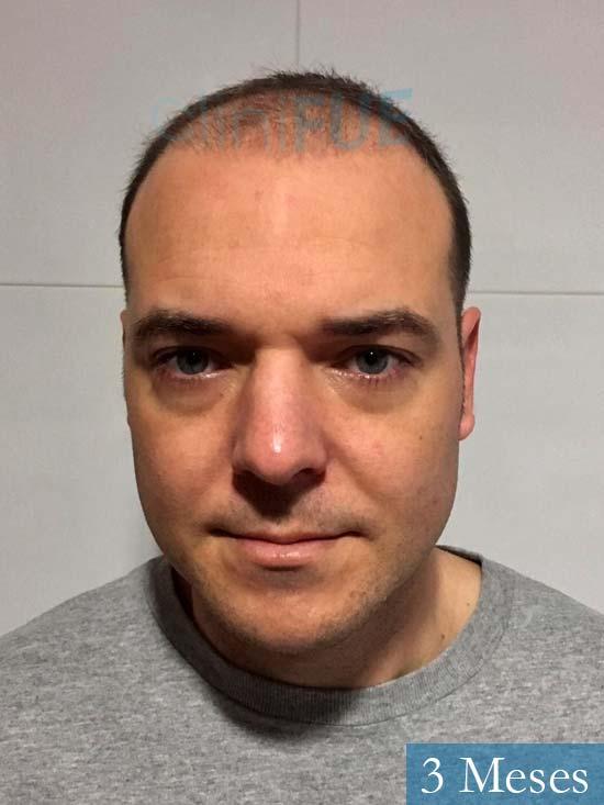 Miguel Antonio 36 Almeria injerto de pelo dia operacion 3 meses