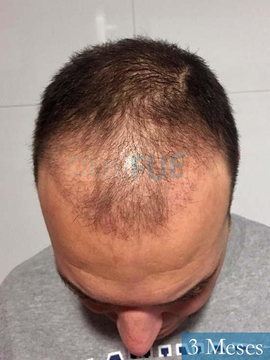 Miguel Antonio 36 Almeria injerto de pelo dia operacion 3 meses 2