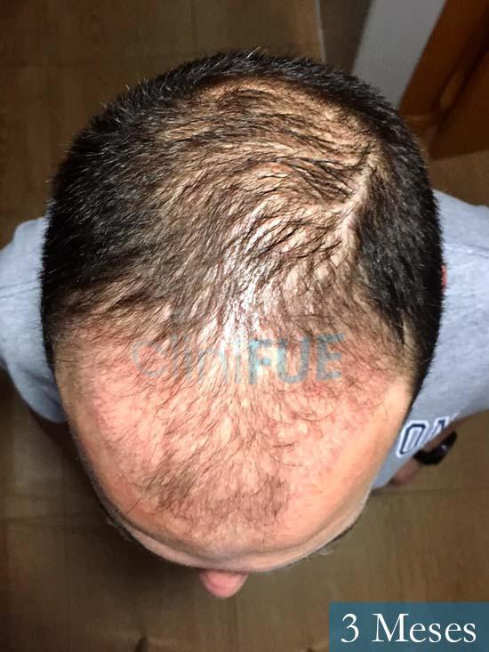 Miguel Antonio 36 Almeria injerto de pelo dia operacion 3 meses 3