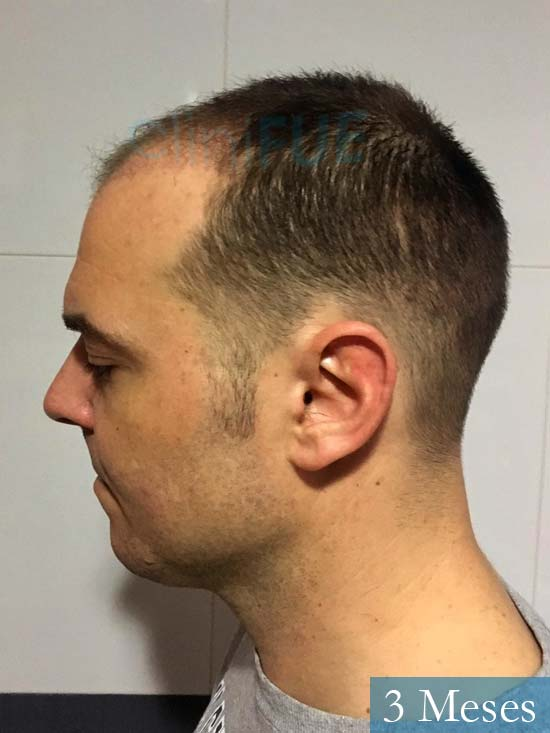 Miguel Antonio 36 Almeria injerto de pelo dia operacion 3 meses 5