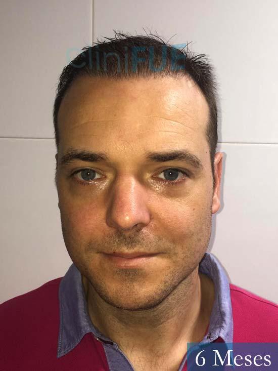 Miguel Antonio 36 Almeria injerto de pelo dia operacion 6 meses