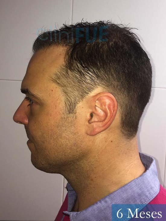 Miguel Antonio 36 Almeria injerto de pelo dia operacion 6 meses 3