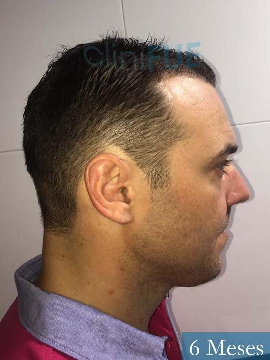Miguel Antonio 36 Almeria injerto de pelo dia operacion 6 meses 2