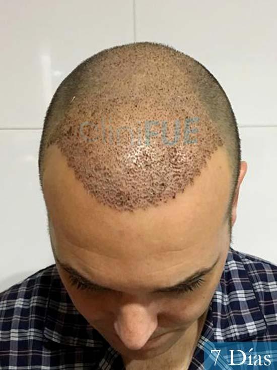Miguel 36 Almeria injerto de pelo dia operacion 7 dias 2
