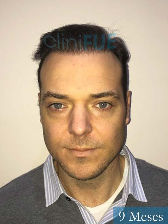 Miguel Antonio 36 Almeria injerto de pelo dia operacion 9 meses