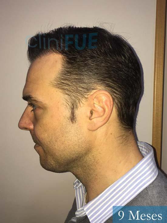 Miguel Antonio 36 Almeria injerto de pelo dia operacion 9 meses 4