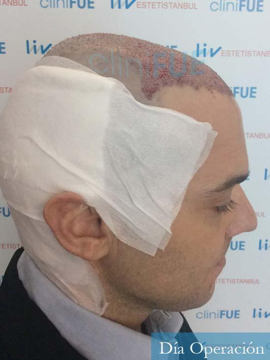 Miguel 36 Almeria injerto de pelo dia operacion 3