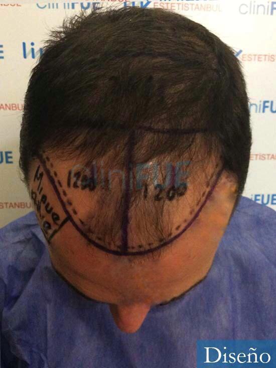 Miguel 36 Almeria injerto de pelo dia operacion diseno 2
