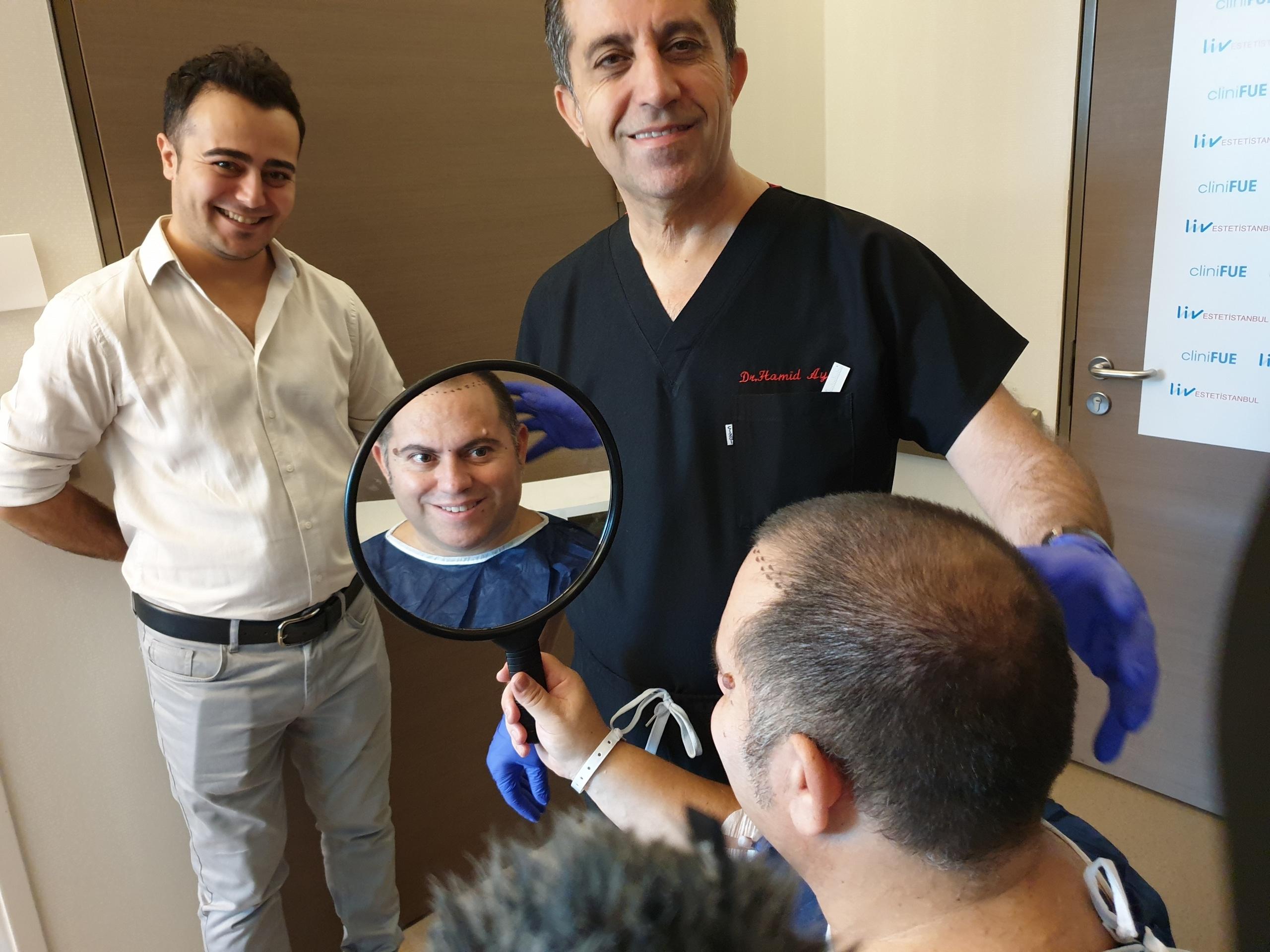 Injerto capilar de Ricardo Luengo Pelukeros Youtuber peluquero con más de 400,000 suscriptores con cliniFUE