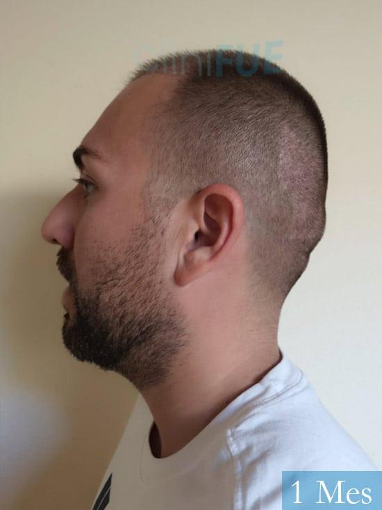 Carlos 30 Madrid injerto de pelo 1 mes 4