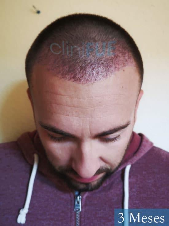 Carlos 30 Madrid injerto de pelo 3 meses 2