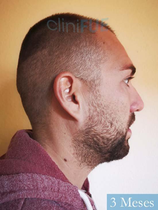 Carlos 30 Madrid injerto de pelo 3 meses 4