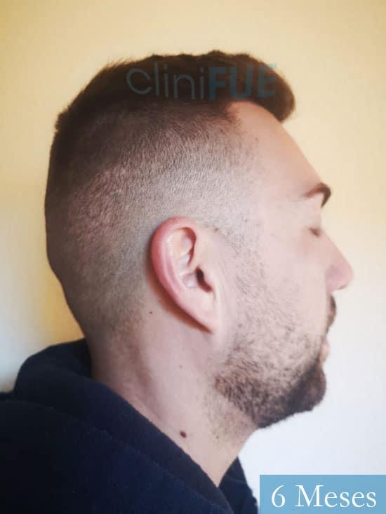 Carlos 30 Madrid injerto de pelo 6 meses 4