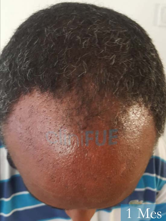 Juan Manuel 52 años injerto capilar turquia primera operacion 1 mes 2
