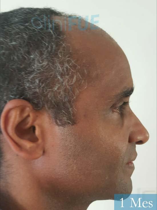 Juan Manuel 52 años injerto capilar turquia primera operacion 1 mes 3