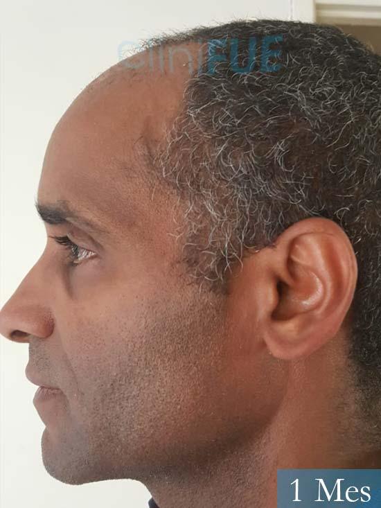 Juan Manuel 52 años injerto capilar turquia primera operacion 1 mes 4
