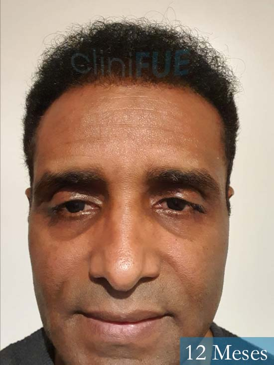 Juan Manuel 52 años injerto capilar turquia primera operacion 12 meses 1