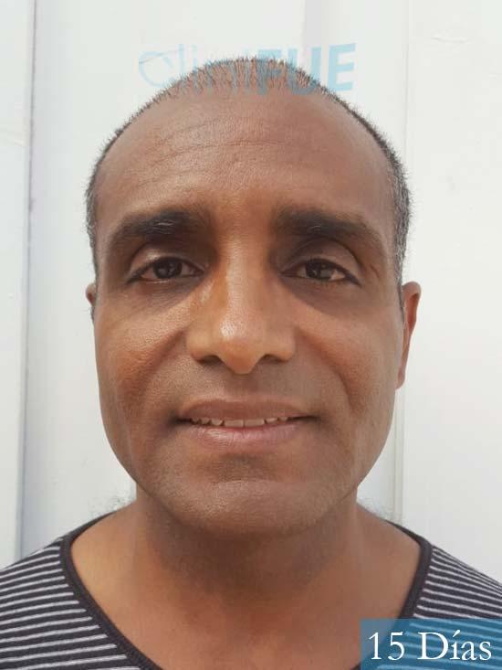 Juan Manuel 52 años injerto capilar turquia primera operacion 15 dias 1