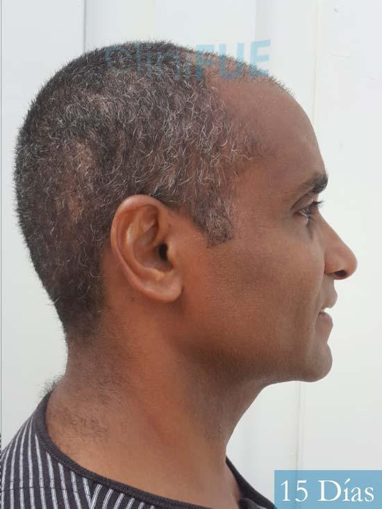 Juan Manuel 52 años injerto capilar turquia primera operacion 15 dias 3