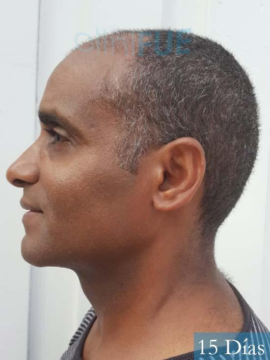 Juan Manuel 52 años injerto capilar turquia primera operacion 15 dias 4