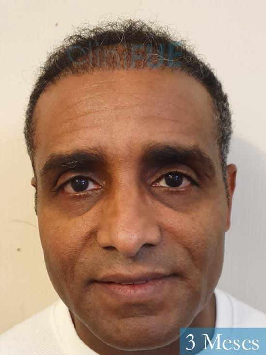 Juan Manuel injerto capilar 2 operaciones 3 meses