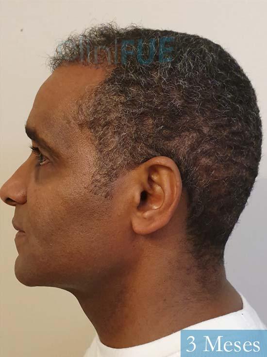 Juan Manuel injerto capilar 2 operaciones 3 meses 4