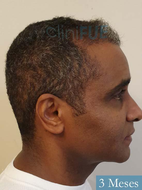 Juan Manuel injerto capilar 2 operaciones 3 meses 3
