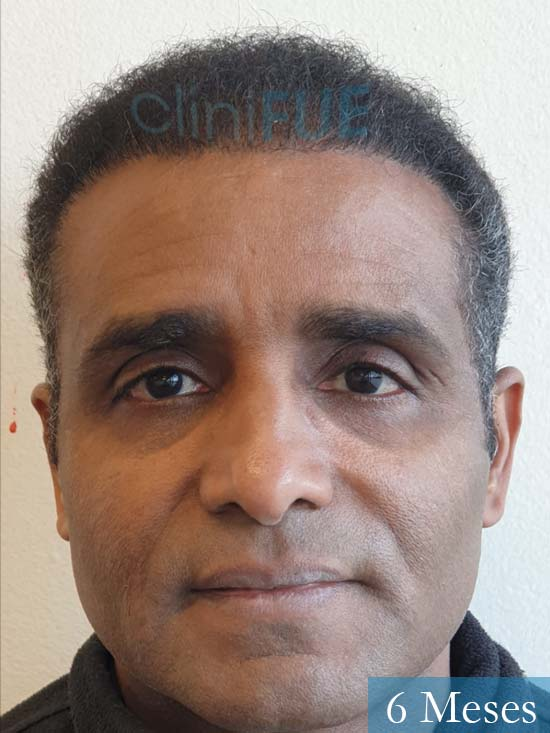 Juan Manuel injerto capilar 2 operaciones 6 meses