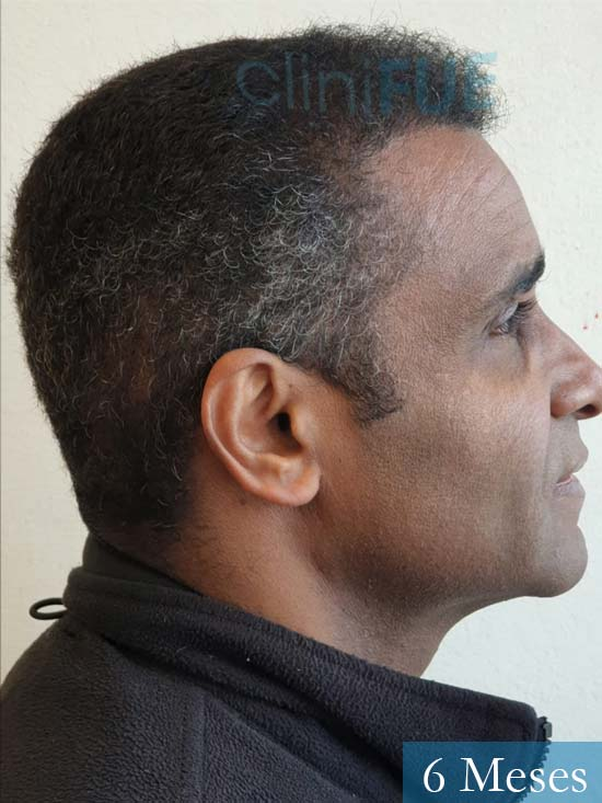 Juan Manuel injerto capilar 2 operaciones 6 meses 3