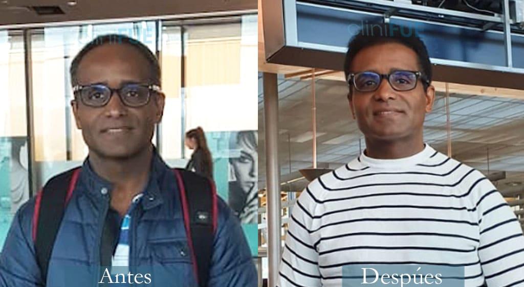 Trasplante capilar de Juan Manuel 52 Años de Oslo con cliniFUE
