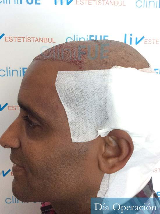 Juan Manuel injerto capilar 2 operaciones dia operacion 4