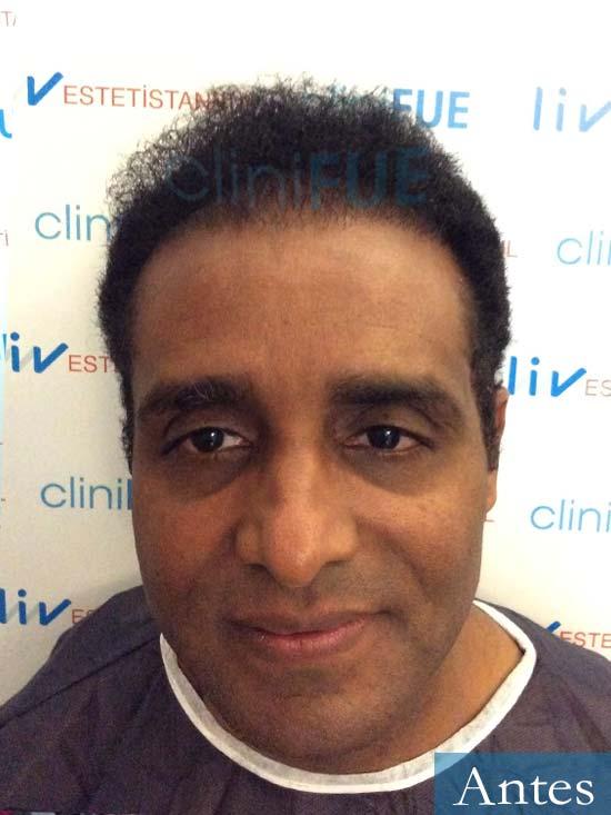 Juan Manuel 52 años injerto capilar turquia segunda operacion antes