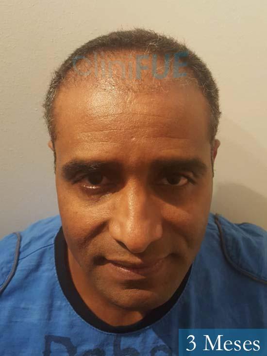 Juan Manuel 52 años injerto capilar turquia primera operacion 3 meses