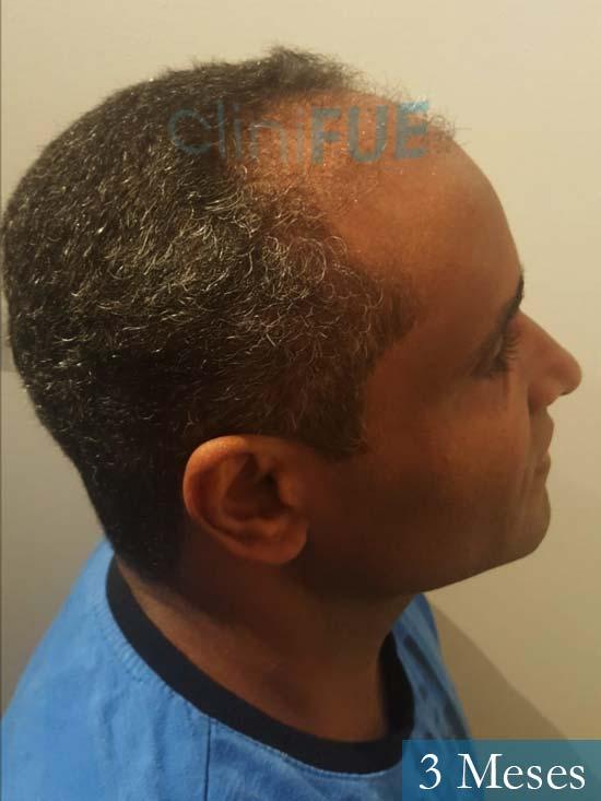 Juan Manuel 52 años injerto capilar turquia primera operacion 3 meses 3
